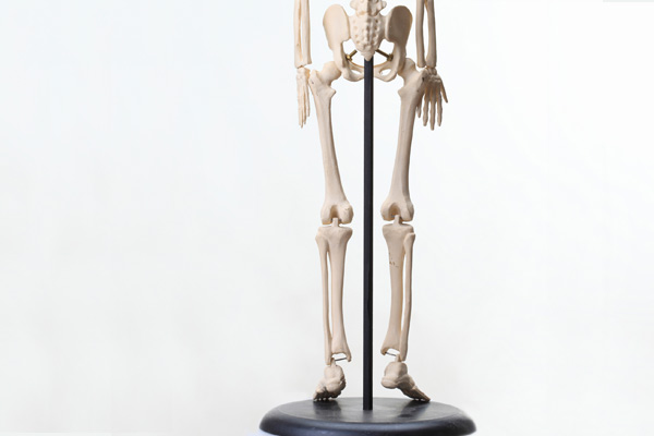 変形性股関節症