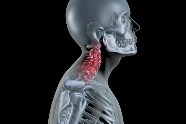 変形性頸椎症