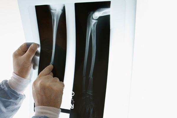 骨粗しょう症について